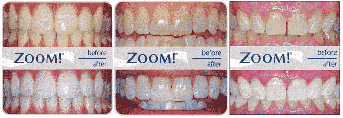 zoom before after | Uplus Dental