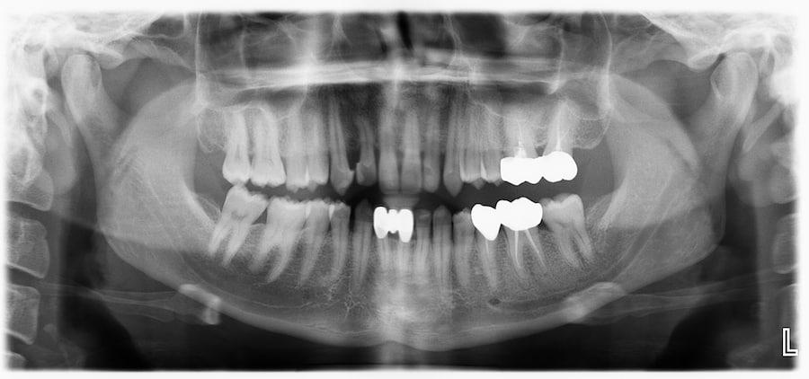 Dental-OPG-Xray