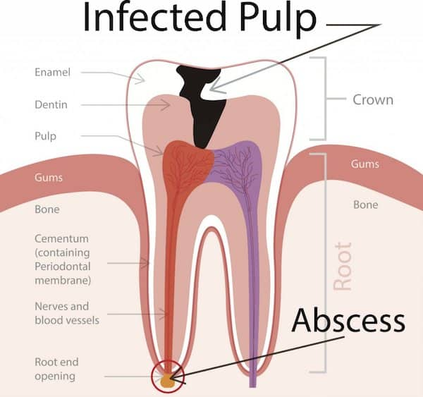 root-canal-infection-medium
