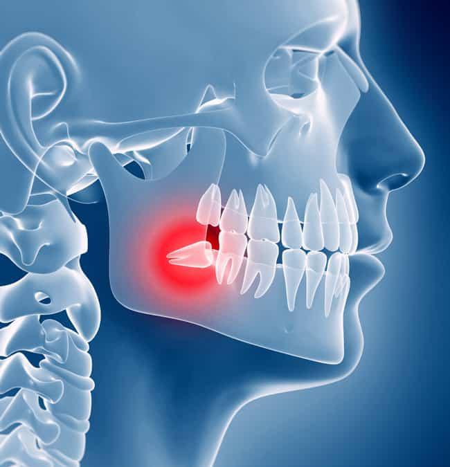 Affordable Wisdom Teeth Removal Sydney Strathfield