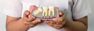 wisdom-teeth-model