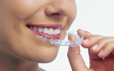 Why choose Invisalign for Orthodontic Treatment