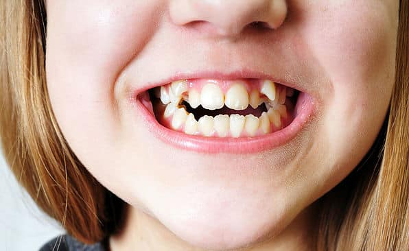 child-teeth-requiring-orthodontics
