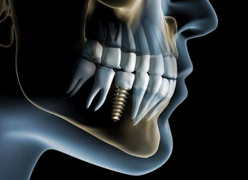 Dental Implant-lookthrough