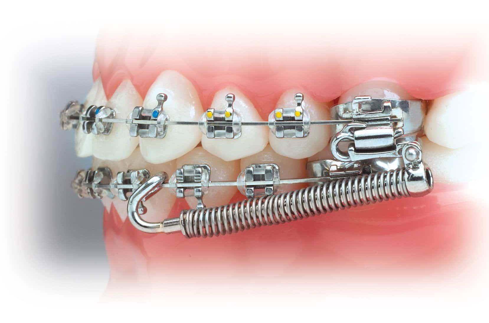 functional braces | Uplus Dental