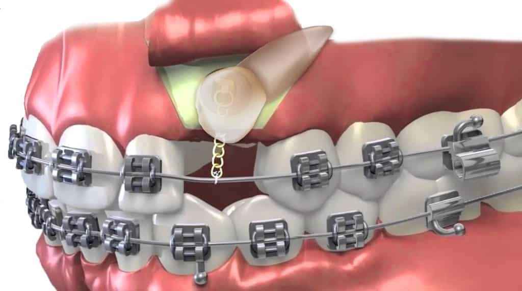 impacted canine tooth | Uplus Dental