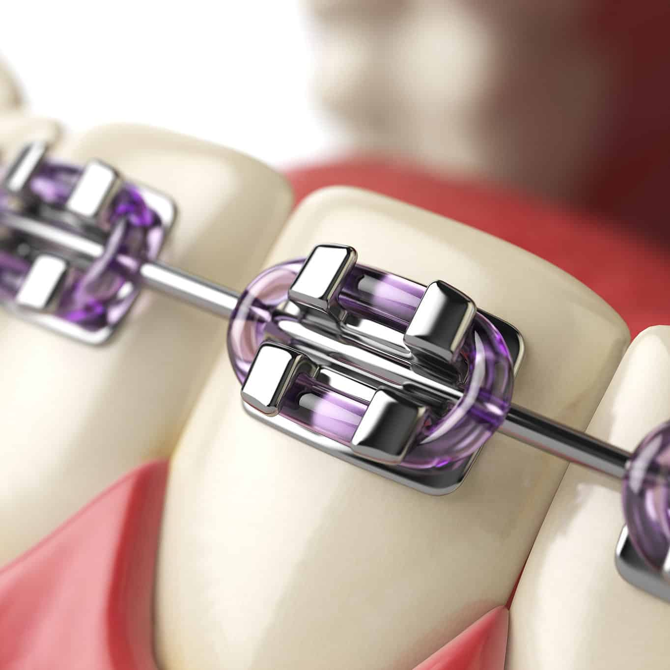 orthodontic-braces-cover.jpg