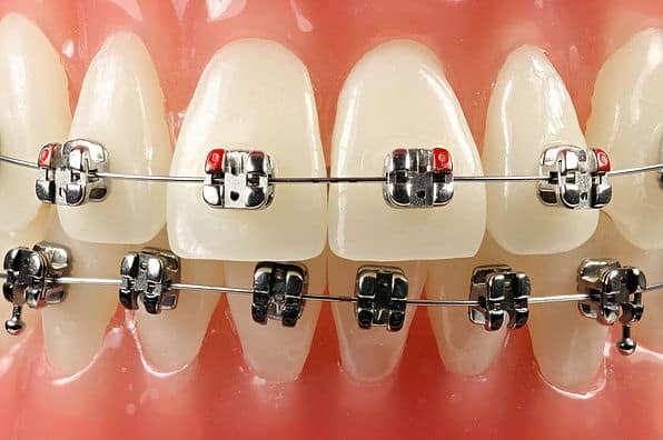 self ligating braces | Uplus Dental
