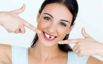 Missing teeth? Here is why you should replace them with Dental Implants