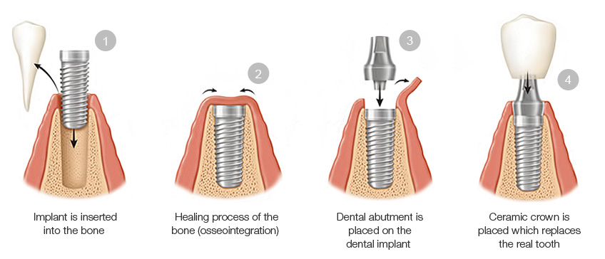 Dental-implants-procedure
