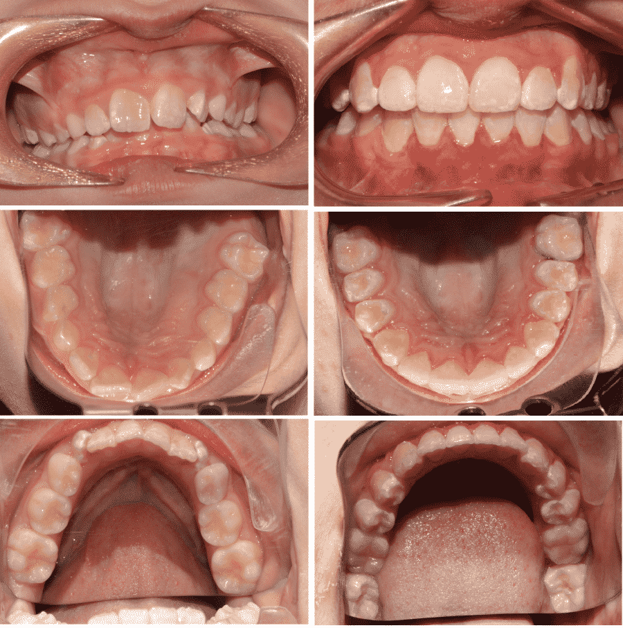 Before & After teeth images #3