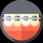 082 braces | Uplus Dental