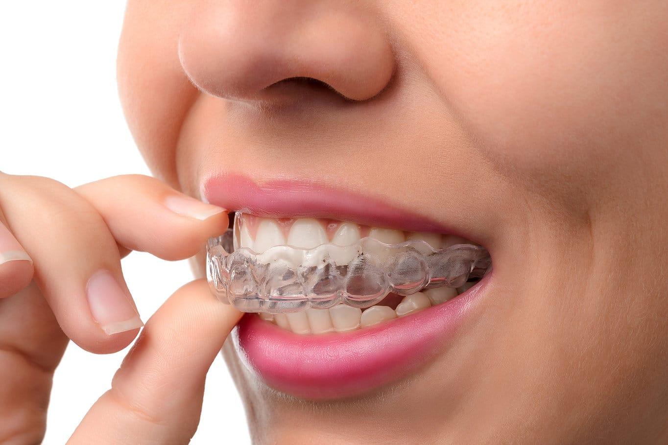 Invisalign large | Uplus Dental